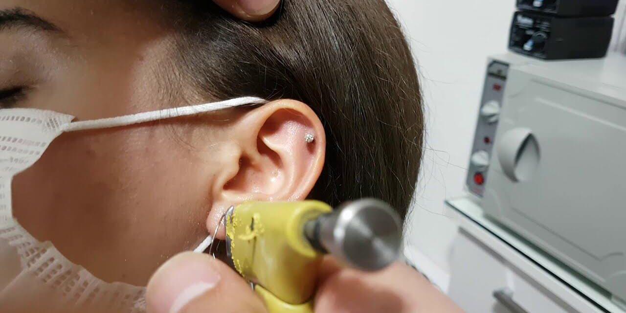 Kulak Delme İşlemi Sonrasında Enfeksiyon Kapmaması İçin Bakım Öneriler
